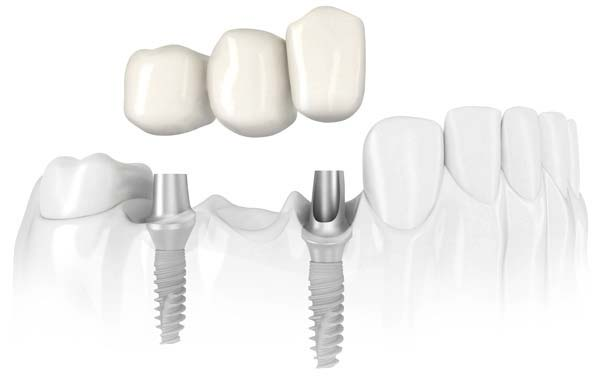 Placement of a three-tooth dental bridge with two dental implants