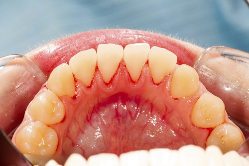 A close up of a patients mouth suffering from gum disease.